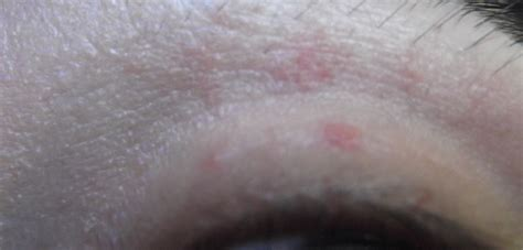 psa increase and herpes picture 6