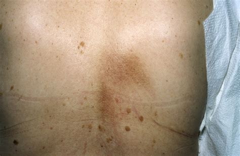 red marks on skin from s picture 9