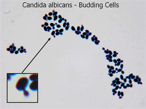 candida albicans is the picture 5