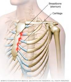 what dysfuncting organ can cause breast bone back picture 5