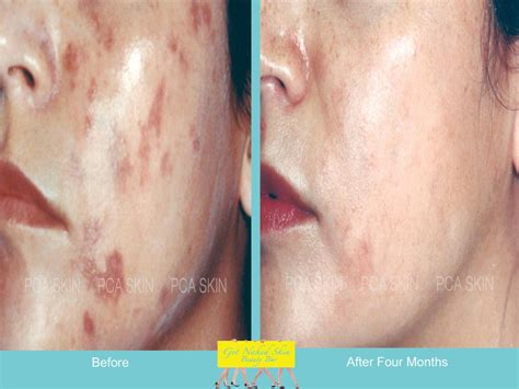 conceal genital acne picture 10