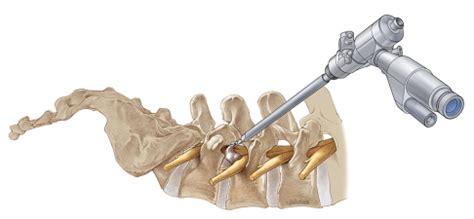 facet joint disease picture 22