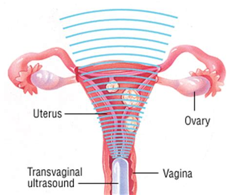 light vaginal bleeding, increase urination, weight gain picture 15