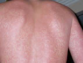 skin allergies to alcohol picture 2