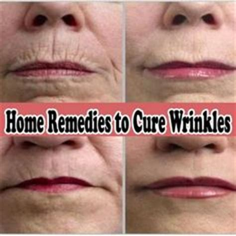 upper lip wrinkle remover picture 13