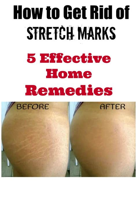 how to get rid of stretch marks picture 1