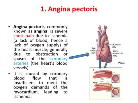 what causes lack of blood flow to the picture 2