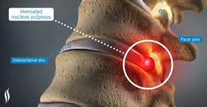 testosterone therapy for herniated disc picture 9