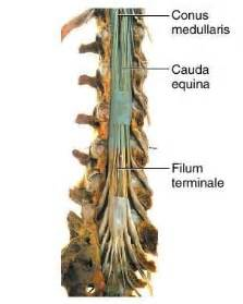 cauda equina bladder picture 13