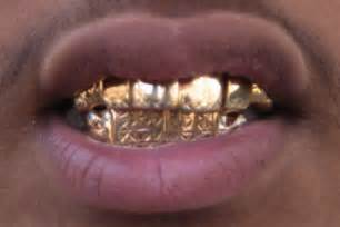grills for teeth in arkansas picture 7