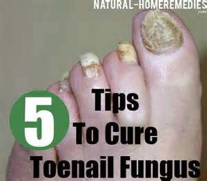 cure for yellow toe nail fungus picture 10