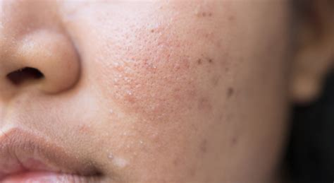 acne scarring on face what to do picture 10