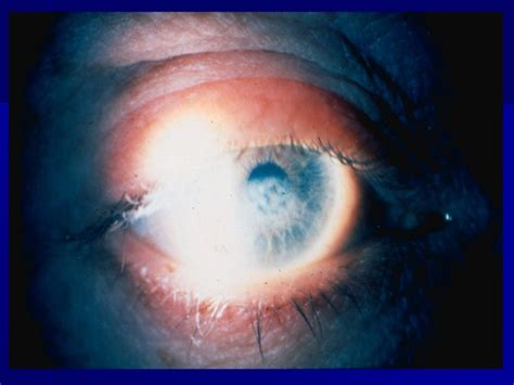 corneal herpes picture 7