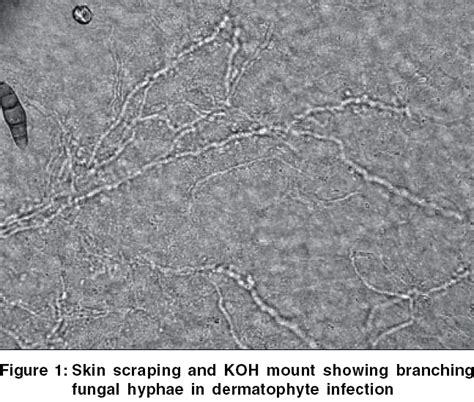 fungi nail picture 5