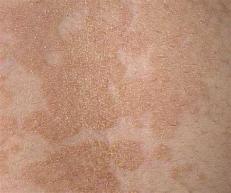 skin darker cream picture 9