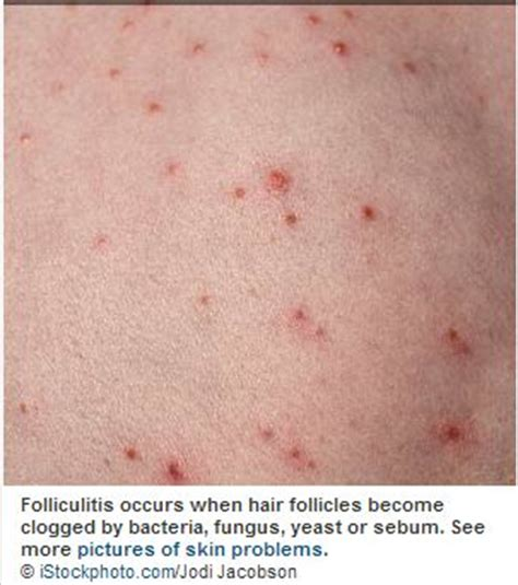 folliculitis an infection of hair follicles picture 10