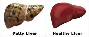causes of fatty infusion on liver picture 2
