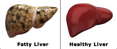 fatty liver get rid of cellulite picture 7