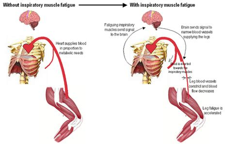 muscle weakness and fatigue picture 9