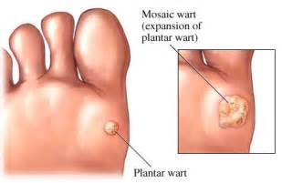 medical plantar warts picture 3