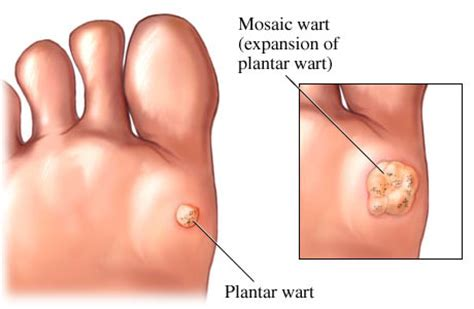 plantars wart and treatment picture 19