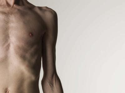 anorexic weight loss range picture 13
