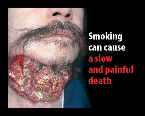 can nicotine cause yellowed skin picture 2