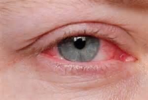 yeast infection in eyes picture 2