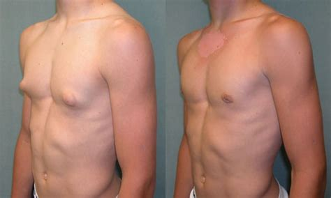 male nipple enlargement picture 5