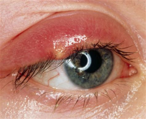 skin growths near eyes picture 5