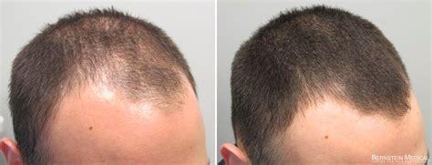 avodart on hair loss picture 9