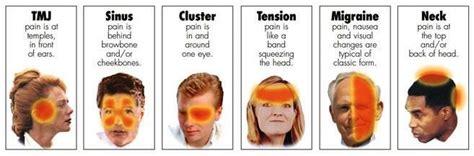 florida headache pain relief picture 6