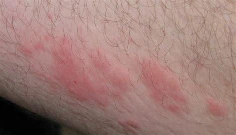 skin rash picture 5