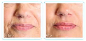 ageing serums picture 6
