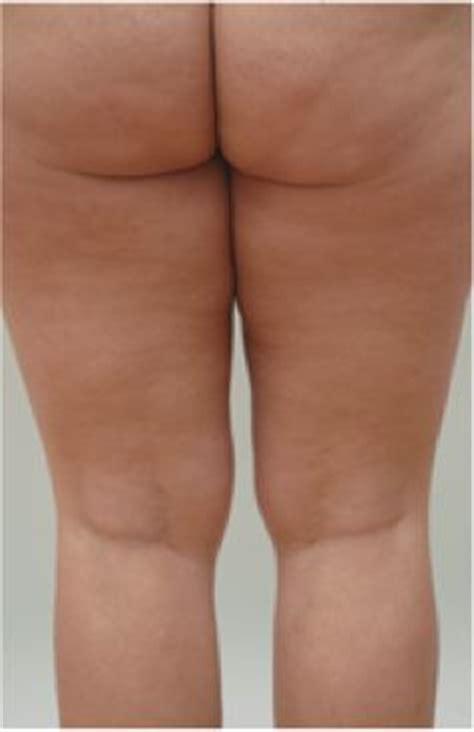 san francisco california cellulite treatment picture 14