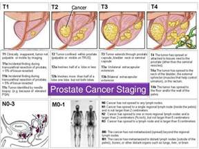 Prostate cancer stages picture 1