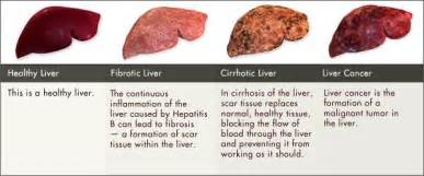 liver cancer staging picture 9