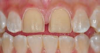 dentist porcelin teeth picture 3