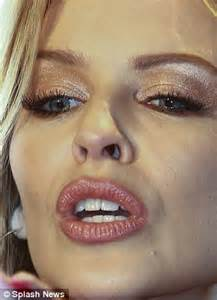 lip fillers picture 5