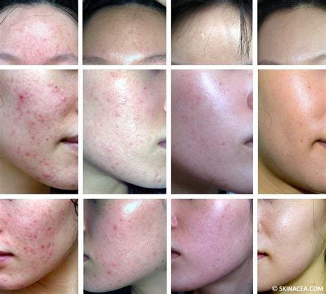 how to treat post acne marks picture 7