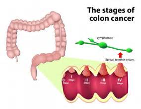 stage 4 colon cancer picture 17