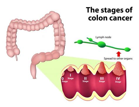 tumor outside of colon picture 1
