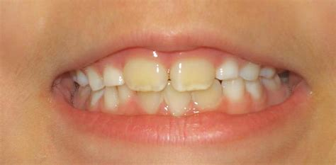 discolored teeth in children picture 7