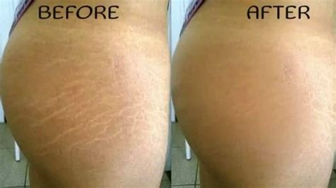 stretch mark specialists picture 1