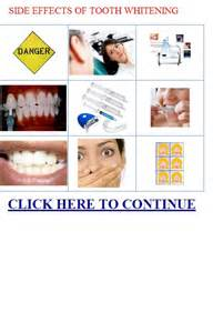 tampa teeth whitening picture 2
