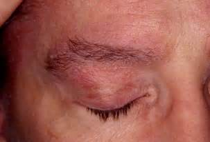 are hives a sign of liver distress? picture 17