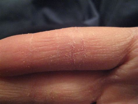 chapped skin picture 1