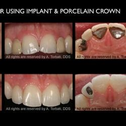 los angeles tooth crown picture 14