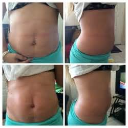 weight loss body wraps pasco florida picture 13