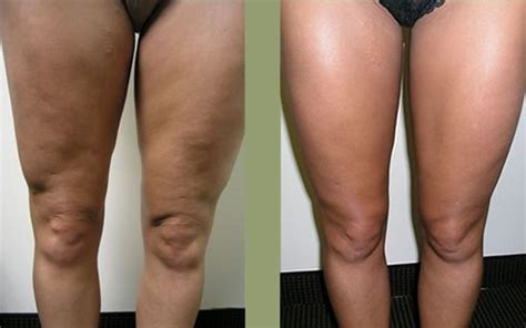 cellulite treatments picture 2